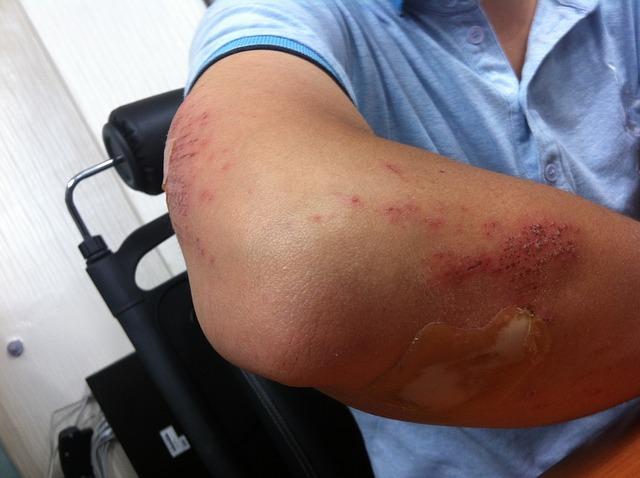 Gomito del tennista – Informazioni e trattamento per lesioni doloros
